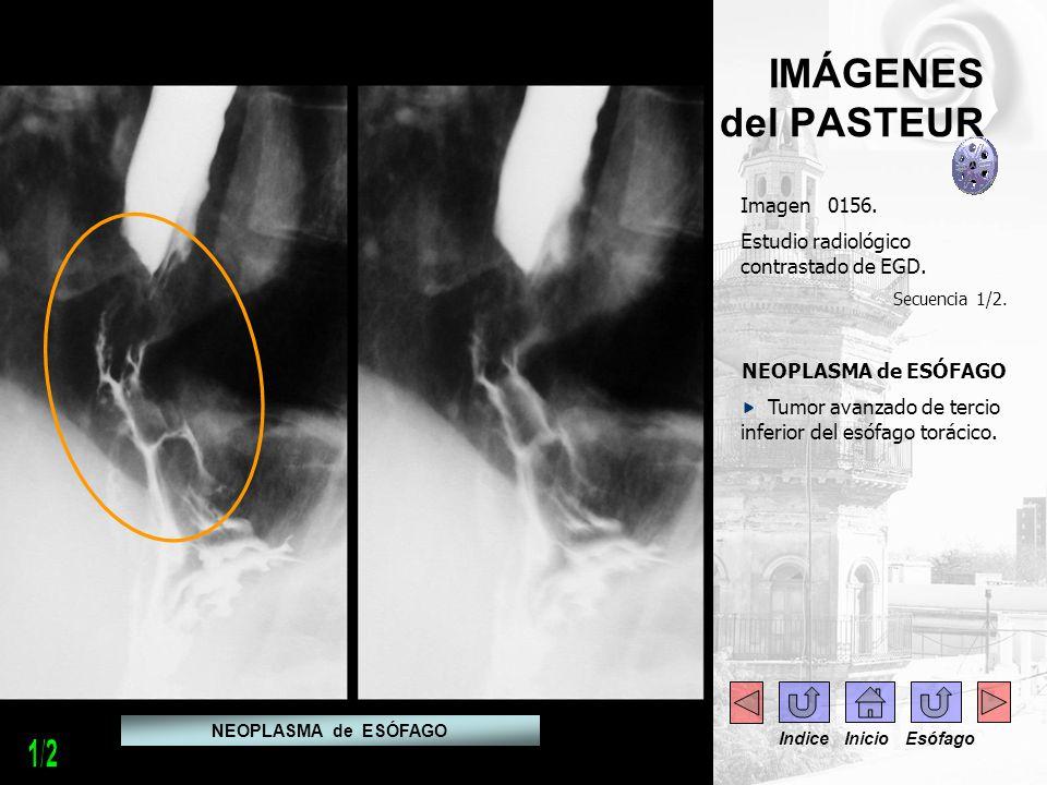IMÁGENES del PASTEUR Imagen 0156. Estudio radiológico contrastado de EGD. Secuencia 1/2. NEOPLASMA de ESÓFAGO Tumor avanzado de tercio inferior del es