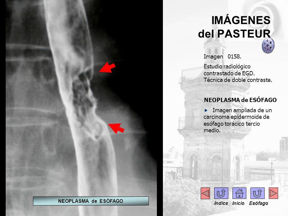 IMÁGENES del PASTEUR Imagen 0158. Estudio radiológico contrastado de EGD. Técnica de doble contraste. NEOPLASMA de ESÓFAGO Imagen ampliada de un carci