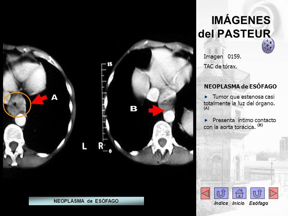 IMÁGENES del PASTEUR Imagen 0159. TAC de tórax. NEOPLASMA de ESÓFAGO Tumor que estenosa casi totalmente la luz del órgano. (A) Presenta íntimo contact