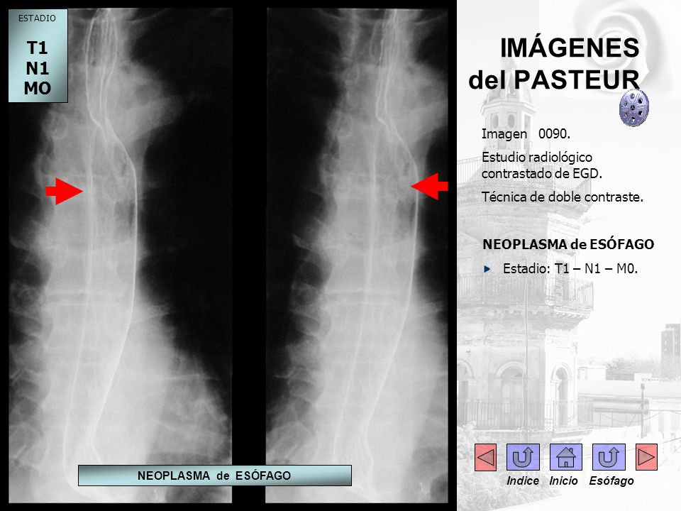 IMÁGENES del PASTEUR Imagen 0090. Estudio radiológico contrastado de EGD. Técnica de doble contraste. NEOPLASMA de ESÓFAGO Estadio: T1 – N1 – M0. ESTA