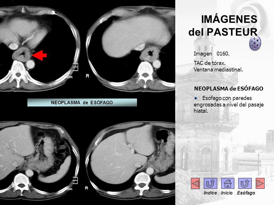 IMÁGENES del PASTEUR Imagen 0160. TAC de tórax. Ventana mediastinal. NEOPLASMA de ESÓFAGO Esófago con paredes engrosadas a nivel del pasaje hiatal. NE