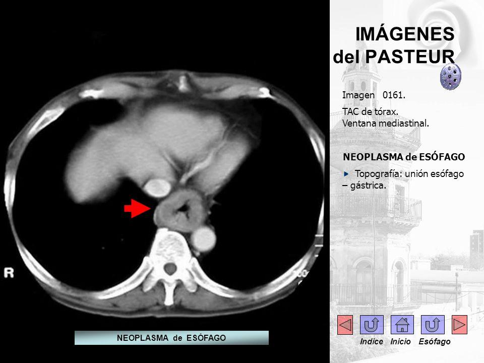 IMÁGENES del PASTEUR Imagen 0161. TAC de tórax. Ventana mediastinal. NEOPLASMA de ESÓFAGO Topografía: unión esófago – gástrica. NEOPLASMA de ESÓFAGO I