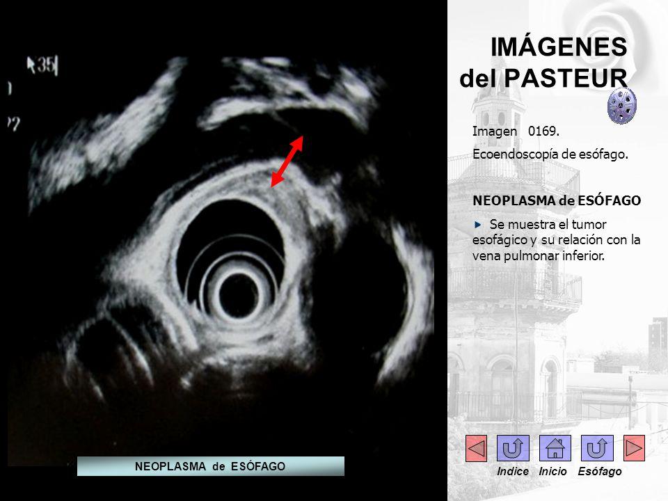 IMÁGENES del PASTEUR Imagen 0169. Ecoendoscopía de esófago. NEOPLASMA de ESÓFAGO Se muestra el tumor esofágico y su relación con la vena pulmonar infe
