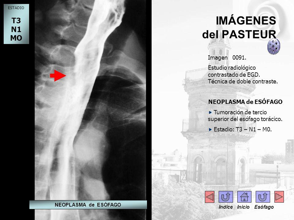 IMÁGENES del PASTEUR Imagen 0092.Estudio radiológico contrastado de EGD.