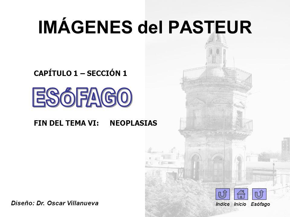 IMÁGENES del PASTEUR Diseño: Dr. Oscar Villanueva CAPÍTULO 1 – SECCIÓN 1 FIN DEL TEMA VI: NEOPLASIAS Indice Inicio Esófago