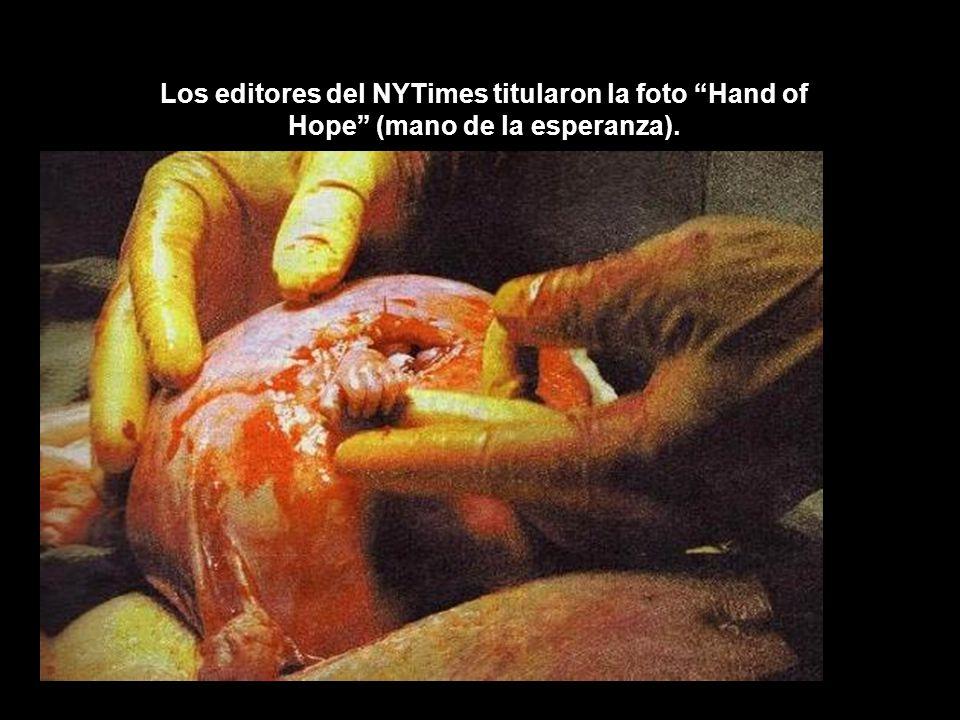 Los editores del NYTimes titularon la foto Hand of Hope (mano de la esperanza).