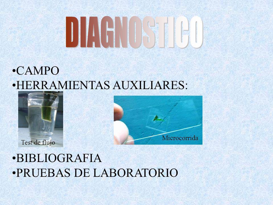 CAMPO HERRAMIENTAS AUXILIARES: BIBLIOGRAFIA PRUEBAS DE LABORATORIO Test de flujo Microcorrida