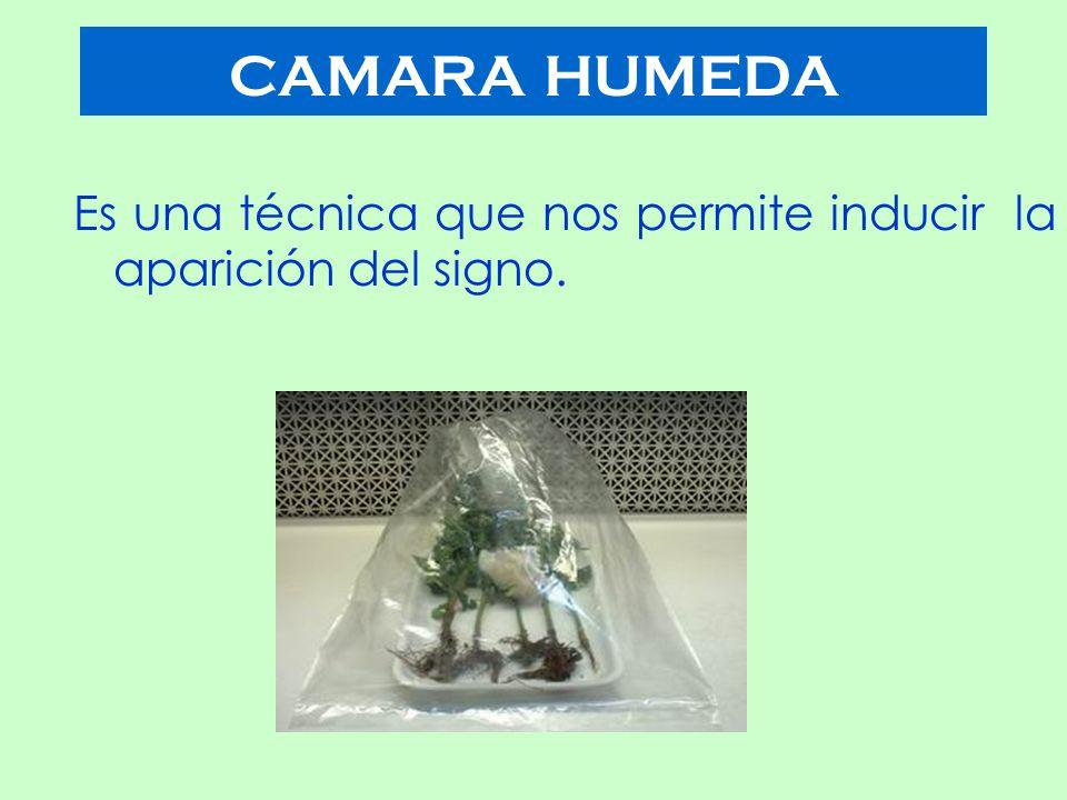 CAMARA HUMEDA Es una técnica que nos permite inducir la aparición del signo.
