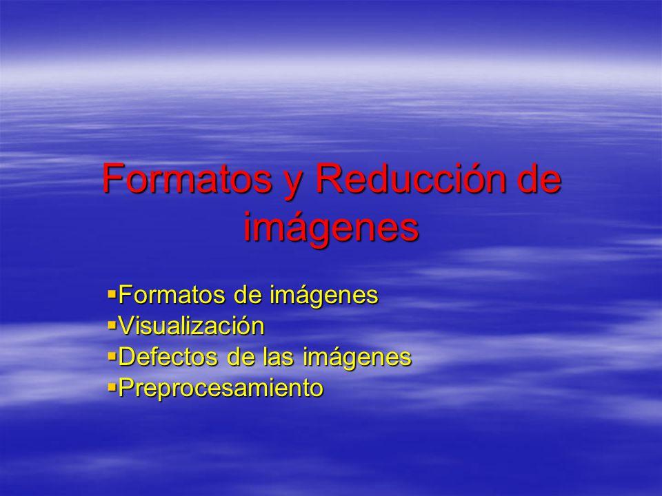 Formatos y Reducción de imágenes Formatos de imágenes Formatos de imágenes Visualización Visualización Defectos de las imágenes Defectos de las imágen