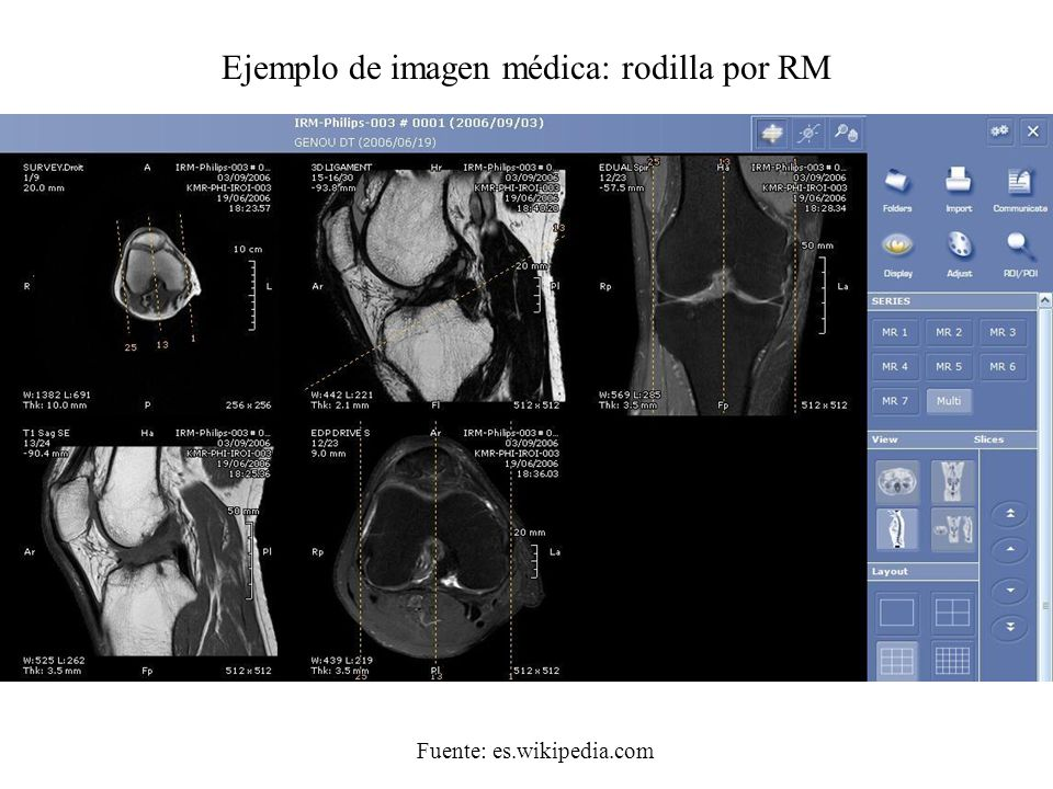 Ejemplo de imagen médica: rodilla por RM Fuente: es.wikipedia.com