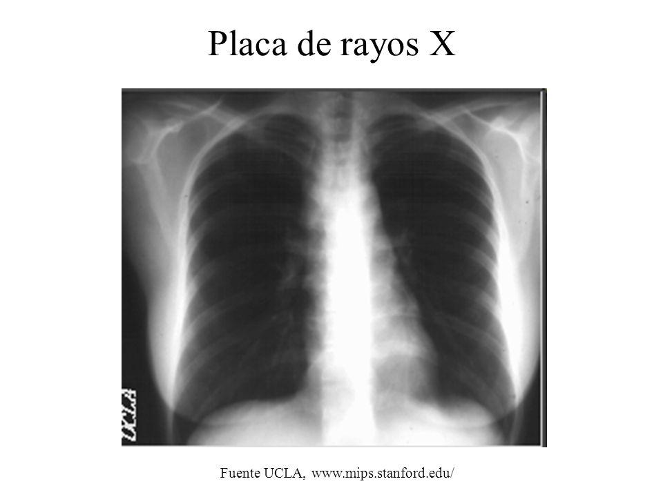 Placa de rayos X Fuente UCLA, www.mips.stanford.edu/