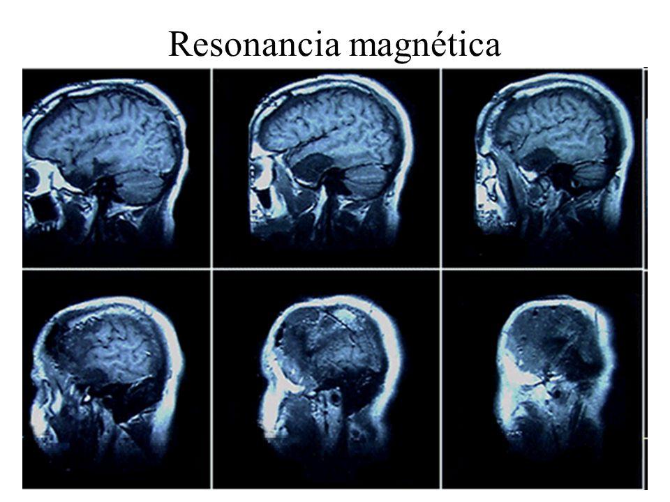 Resonancia magnética Fuente UCLA, www.mips.stanford.edu/