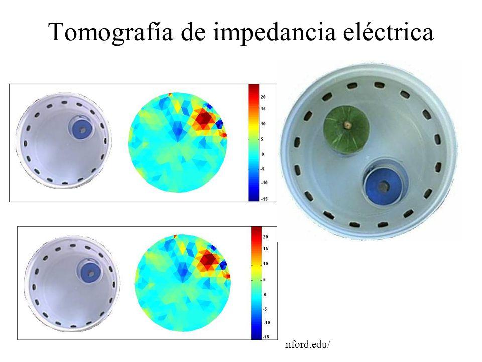 Tomografía de impedancia eléctrica Fuente UCLA, www.mips.stanford.edu/
