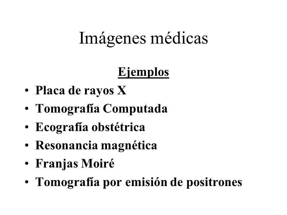 Imágenes médicas Ejemplos Placa de rayos X Tomografía Computada Ecografía obstétrica Resonancia magnética Franjas Moiré Tomografía por emisión de positrones