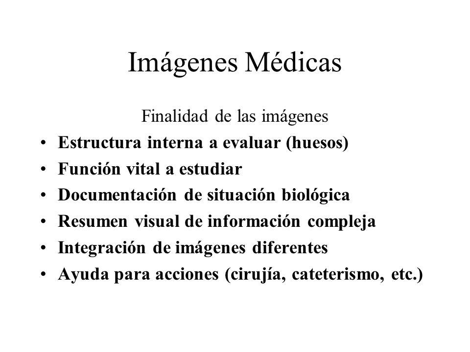 Imágenes Médicas Finalidad de las imágenes Estructura interna a evaluar (huesos) Función vital a estudiar Documentación de situación biológica Resumen visual de información compleja Integración de imágenes diferentes Ayuda para acciones (cirujía, cateterismo, etc.)