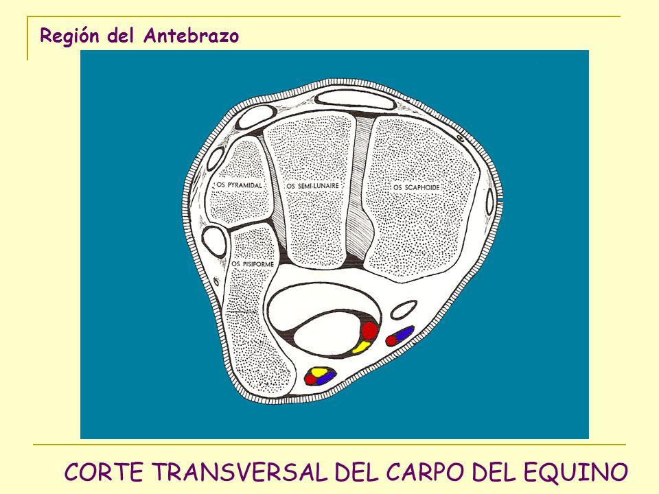 Región del Antebrazo CORTE TRANSVERSAL DEL CARPO DEL EQUINO