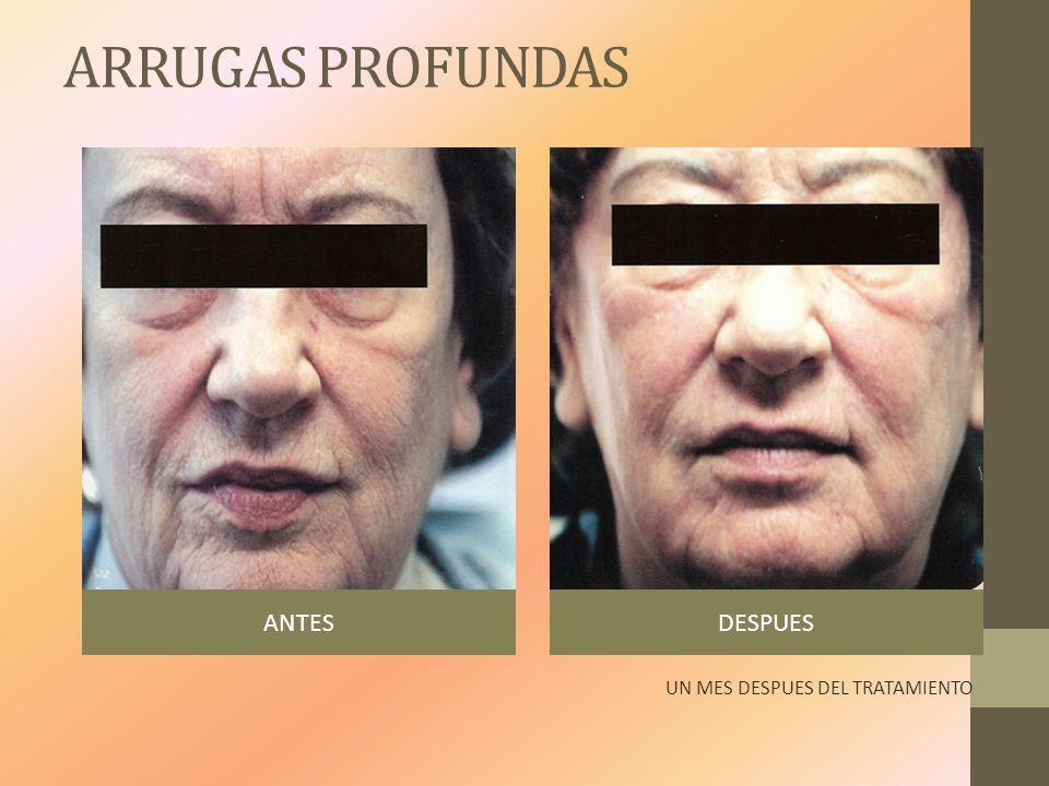 ARRUGAS PROFUNDAS ANTESDESPUES UN MES DESPUES DEL TRATAMIENTO