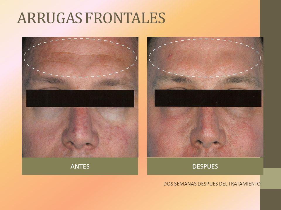 ARRUGAS FRONTALES ANTESDESPUES DOS SEMANAS DESPUES DEL TRATAMIENTO