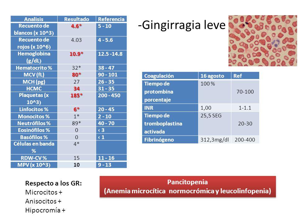 AnalisisResultadoReferencia Recuento de blancos (x 10^3 ) 4.6* 5 - 10 Recuento de rojos (x 10^6 ) 4.034 - 5.6 Hemoglobina (g/dL ) 10.9* 12.5 -14.8 Hem