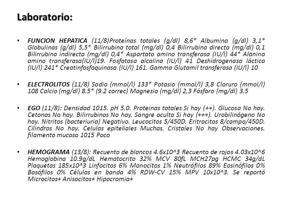 Sin edemas Química11/8Ref Nitrógeno ureico (mg/dl) 88-20 Creatinina sérica (mg/dl) 0,70.6-0.13 EGO11 agostoRef Densidad1015 1.003- 1.030 pH504.6-8 Proteinas totales Si hay (++)0 GlucosaNo hay0 CetonasNo hay0 BilirrubinasNo hay0 Sangre ocultaSi hay (+++)0 UrobilinógenoNo hay0 Nitritos (bacteriuria) Negativo0 Leucocitos5/450D<=1-3 Eritrocitos8/campo/450D<=1-2 CilindrosNo hay0 Celulas epiteliales Muchas CristalesNo hay Observacione s filamento mucoso Poco EXAMEN DE ORINA Aclaramiento endógeno creatinina 111 mL/min 70-120 EXAMEN DE ORINA 24 HORAS Volumen de orina 24 horas 650mL Creatinuria en 24 horas 640mg/24 H 720-1510 Proteinuria en 24 horas 579 mg/24H <100 Nitrógeno ureico en 24 horas 5,3 g/24H12-20