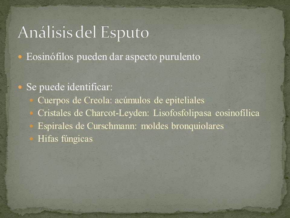 Eosinófilos pueden dar aspecto purulento Se puede identificar: Cuerpos de Creola: acúmulos de epiteliales Cristales de Charcot-Leyden: Lisofosfolipasa