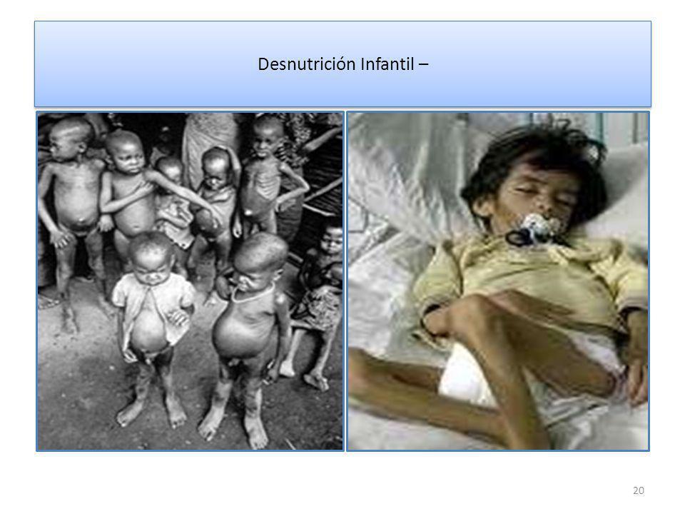 Desnutrición Infantil – 20