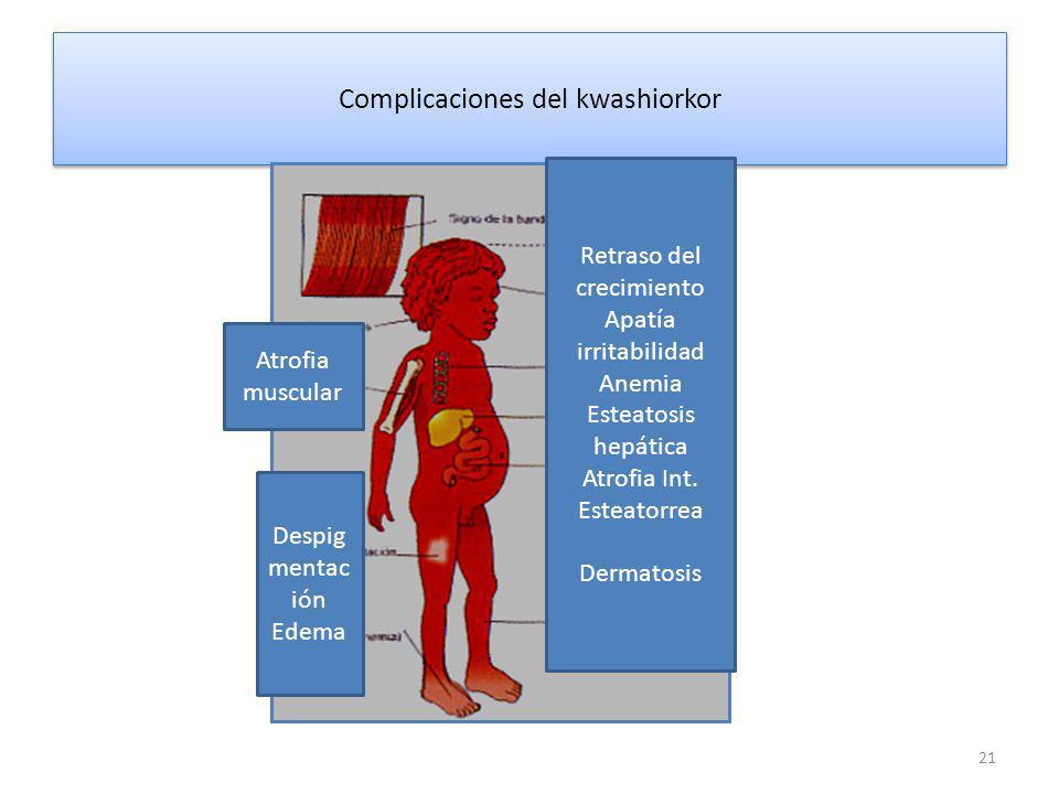 Complicaciones del kwashiorkor 21 Retraso del crecimiento Apatía irritabilidad Anemia Esteatosis hepática Atrofia Int.