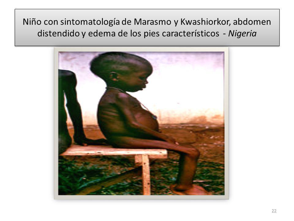 Niño con sintomatología de Marasmo y Kwashiorkor, abdomen distendido y edema de los pies característicos - Nigeria 22