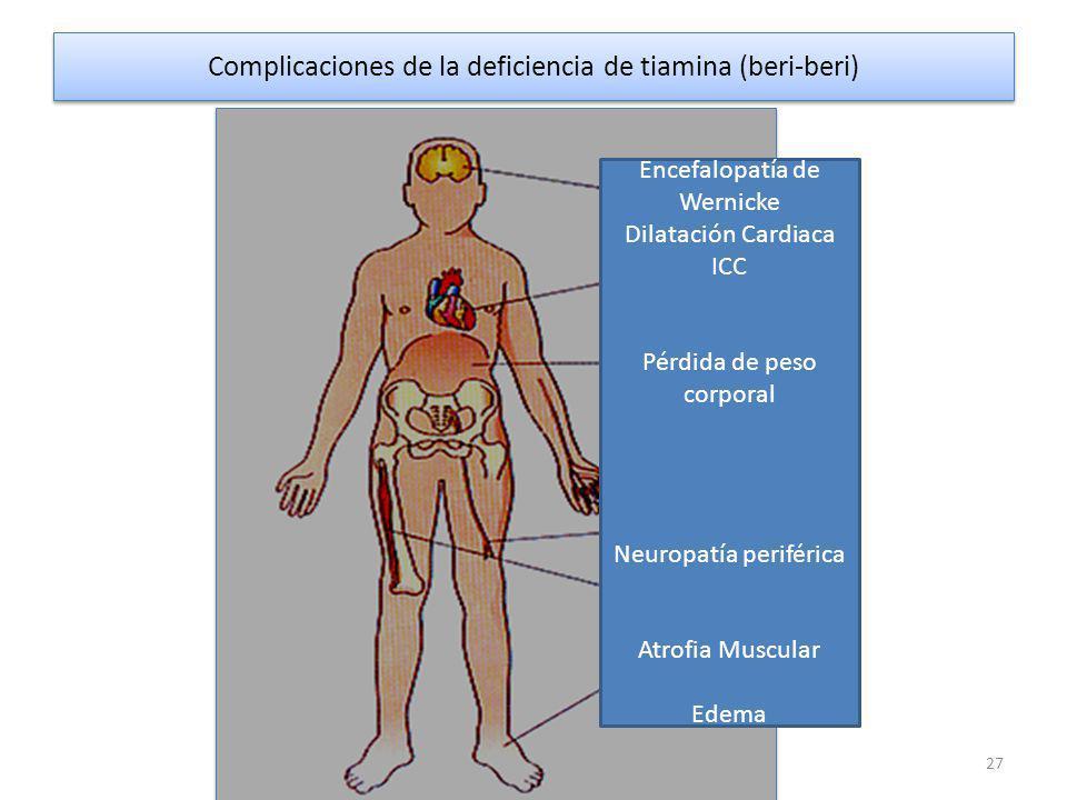 Complicaciones de la deficiencia de tiamina (beri-beri) 27 Encefalopatía de Wernicke Dilatación Cardiaca ICC Pérdida de peso corporal Neuropatía periférica Atrofia Muscular Edema