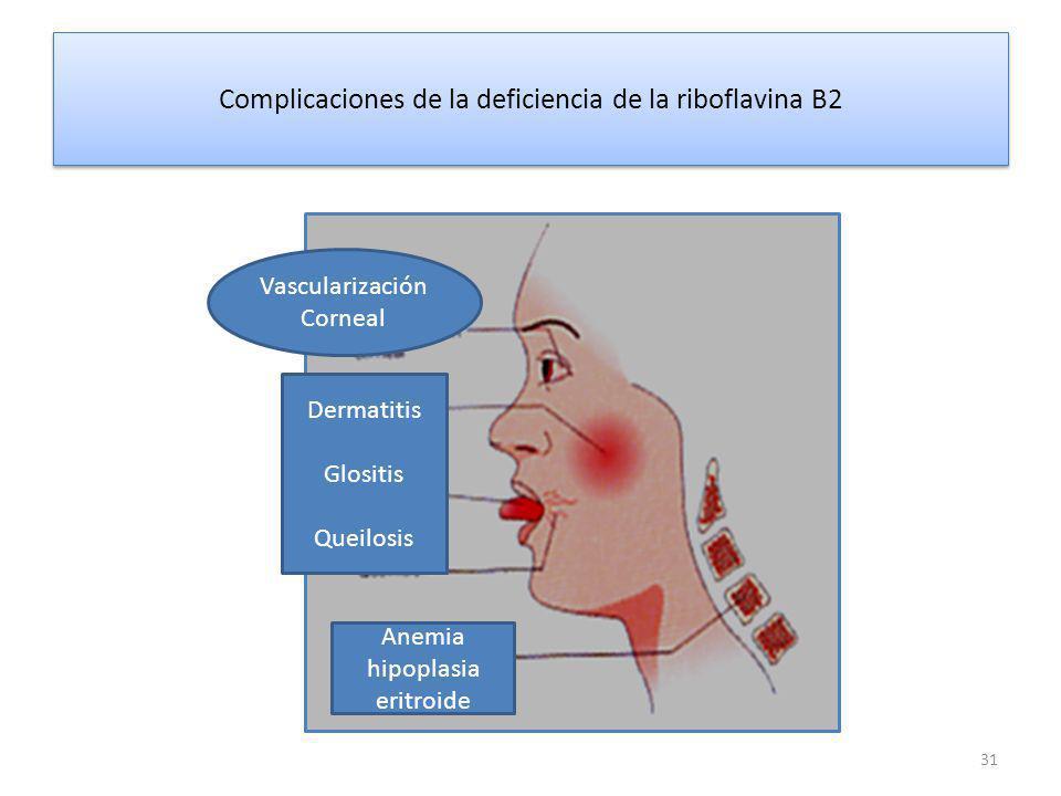 Complicaciones de la deficiencia de la riboflavina B2 31 Vascularización Corneal Dermatitis Glositis Queilosis Anemia hipoplasia eritroide
