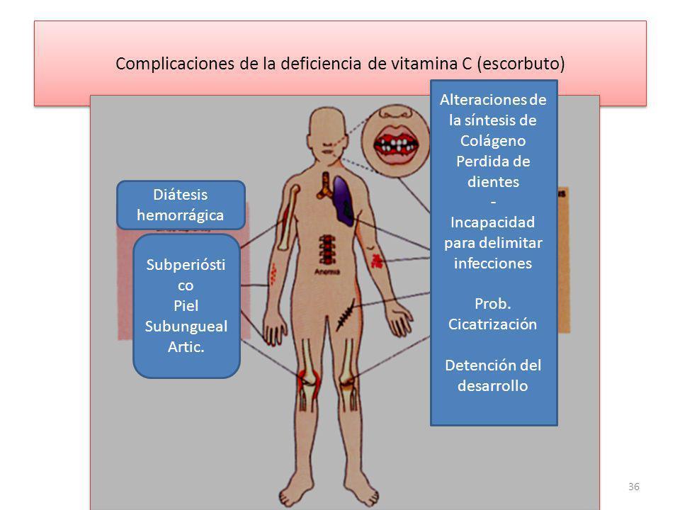 Complicaciones de la deficiencia de vitamina C (escorbuto) 36 Alteraciones de la síntesis de Colágeno Perdida de dientes - Incapacidad para delimitar infecciones Prob.
