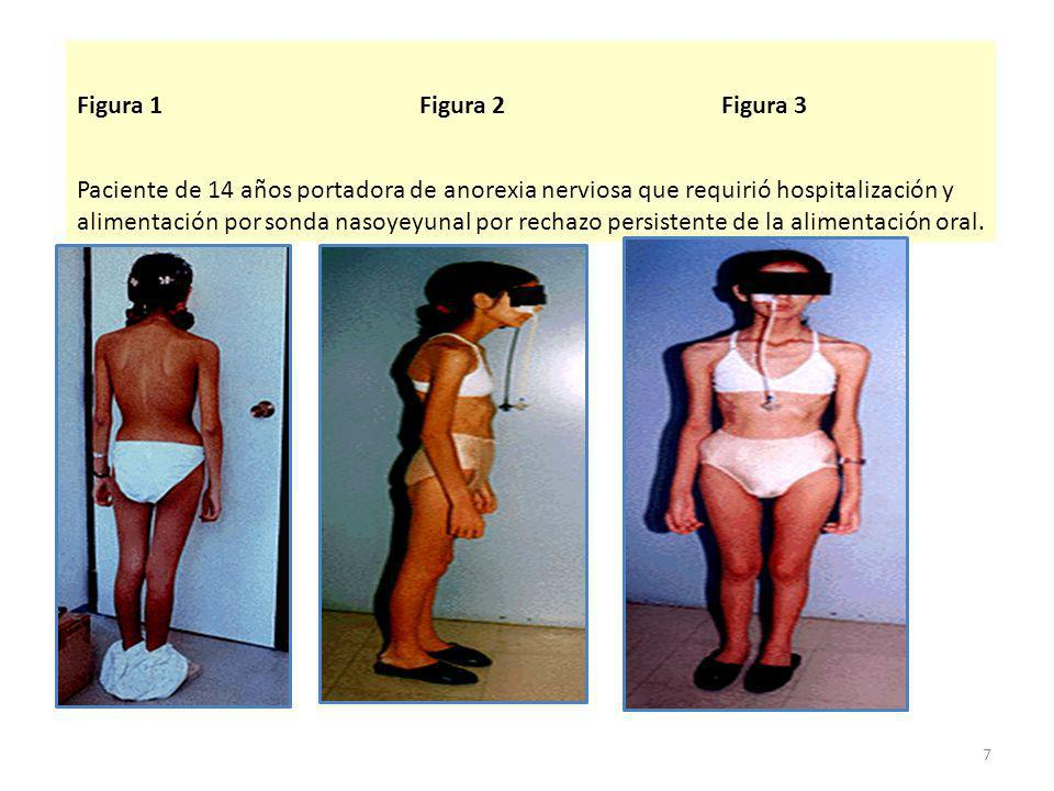 Figura 1Figura 2Figura 3 Paciente de 14 años portadora de anorexia nerviosa que requirió hospitalización y alimentación por sonda nasoyeyunal por rechazo persistente de la alimentación oral.