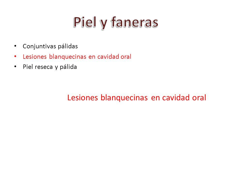 Conjuntivas pálidas Lesiones blanquecinas en cavidad oral Piel reseca y pálida Lesiones blanquecinas en cavidad oral