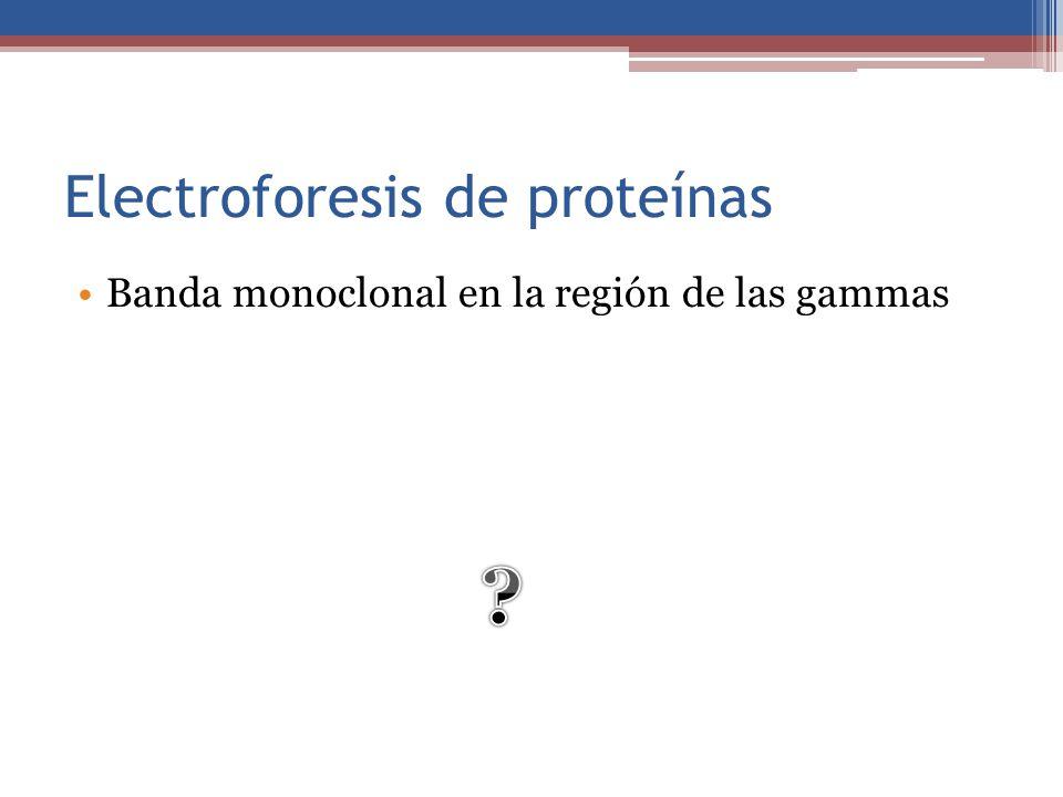Electroforesis de proteínas Banda monoclonal en la región de las gammas