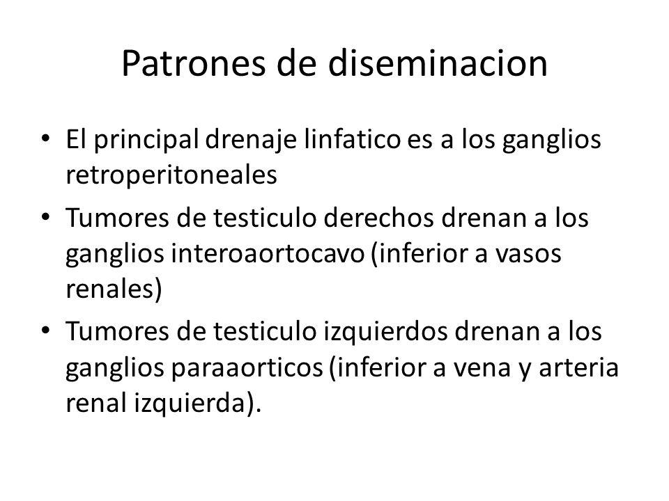 Patrones de diseminacion El principal drenaje linfatico es a los ganglios retroperitoneales Tumores de testiculo derechos drenan a los ganglios intero