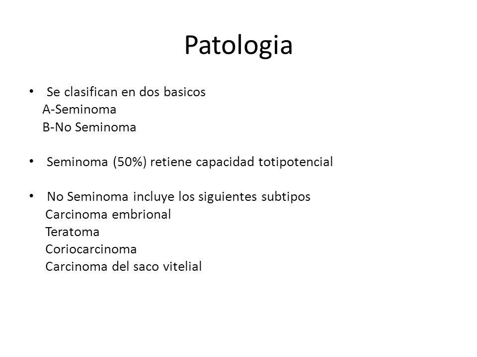 Patologia Se clasifican en dos basicos A-Seminoma B-No Seminoma Seminoma (50%) retiene capacidad totipotencial No Seminoma incluye los siguientes subt