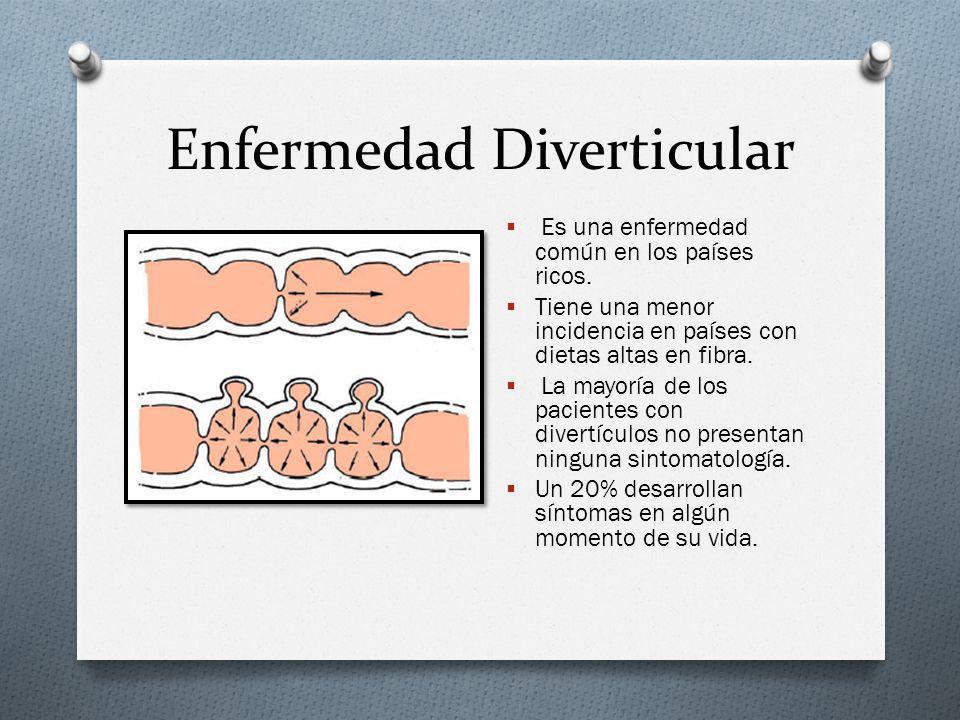 Enfermedad Diverticular Se trata de evaginaciones de mucosa a través de la pared del colon, que se asocian a cambios patológicos como elastosis de las tenias, engrosamiento muscular y plegamiento de la mucosa.