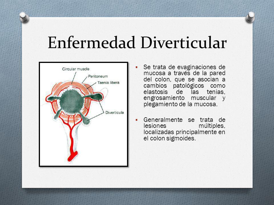 Enfermedad Diverticular (Colon por Enema)