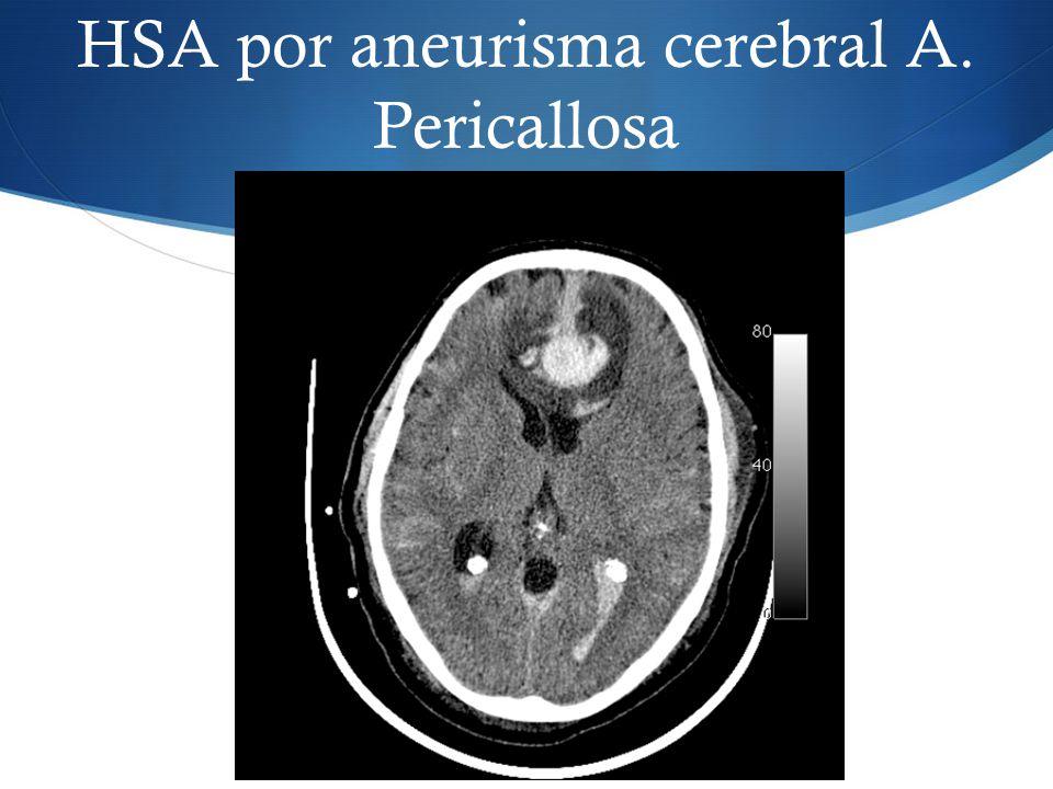 HSA por aneurisma cerebral A. Pericallosa