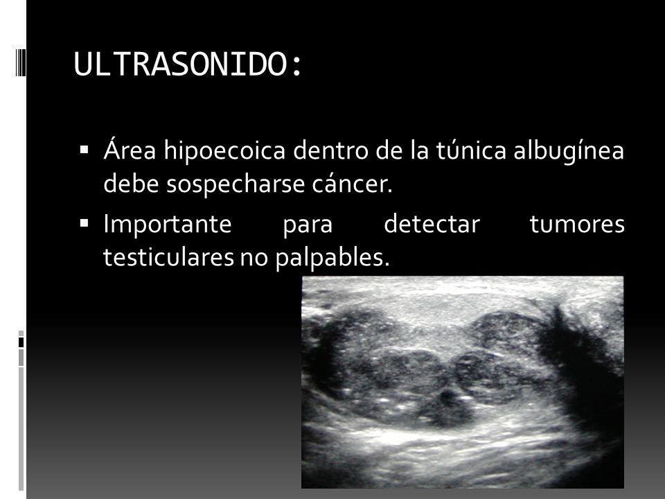ULTRASONIDO: Área hipoecoica dentro de la túnica albugínea debe sospecharse cáncer. Importante para detectar tumores testiculares no palpables.