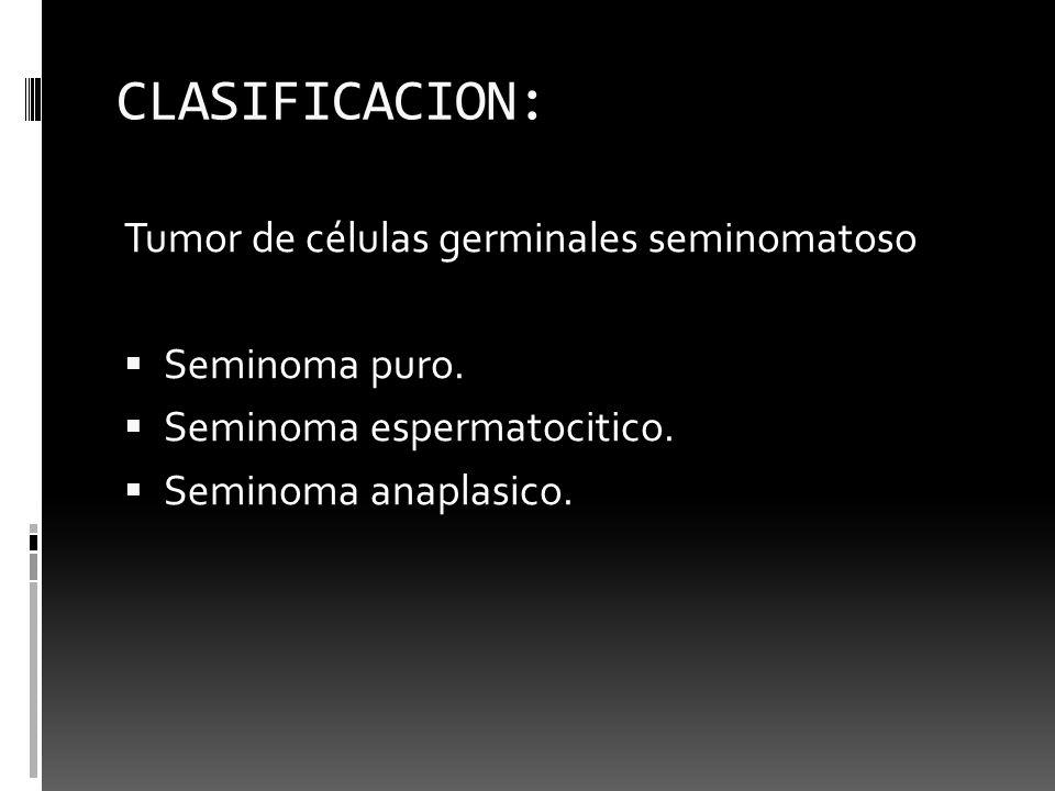 CLASIFICACION: Tumor de células germinales seminomatoso Seminoma puro. Seminoma espermatocitico. Seminoma anaplasico.