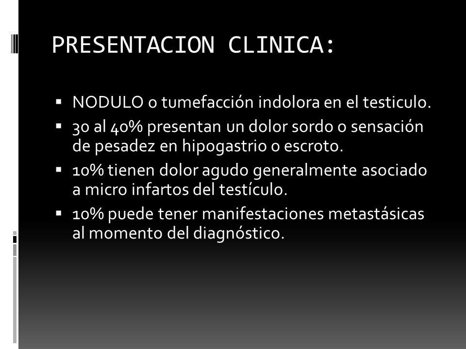 PRESENTACION CLINICA: NODULO o tumefacción indolora en el testiculo. 30 al 40% presentan un dolor sordo o sensación de pesadez en hipogastrio o escrot