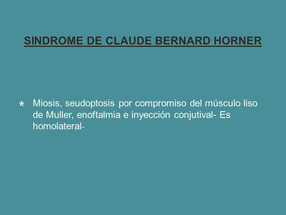 SINDROME DE CLAUDE BERNARD HORNER Miosis, seudoptosis por compromiso del músculo liso de Muller, enoftalmia e inyección conjutival- Es homolateral -
