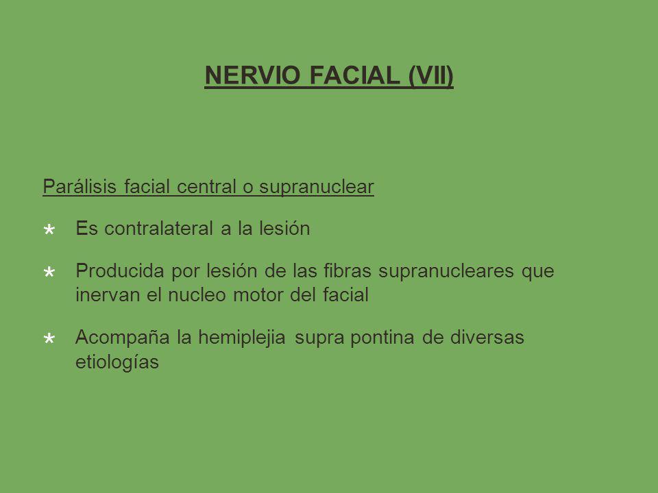 NERVIO FACIAL (VII) Parálisis facial central o supranuclear Es contralateral a la lesión Producida por lesión de las fibras supranucleares que inervan el nucleo motor del facial Acompaña la hemiplejia supra pontina de diversas etiologías