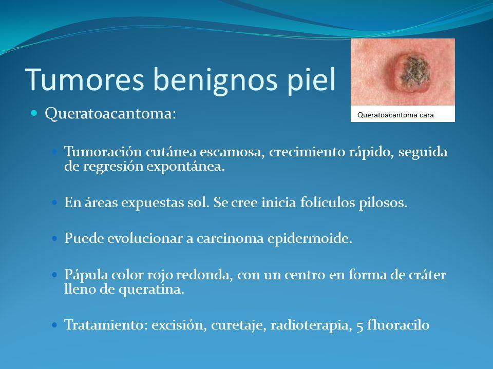 Tumores benignos piel Queratoacantoma: Tumoración cutánea escamosa, crecimiento rápido, seguida de regresión expontánea. En áreas expuestas sol. Se cr