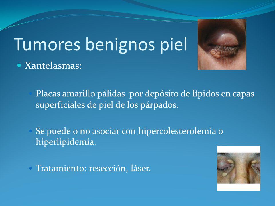 Tumores benignos piel Xantelasmas: Placas amarillo pálidas por depósito de lípidos en capas superficiales de piel de los párpados. Se puede o no asoci