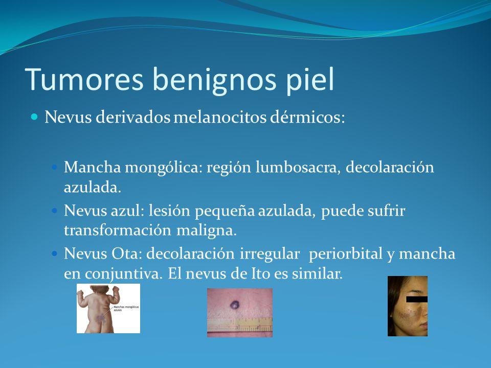 Tumores benignos piel Nevus derivados melanocitos dérmicos: Mancha mongólica: región lumbosacra, decolaración azulada. Nevus azul: lesión pequeña azul