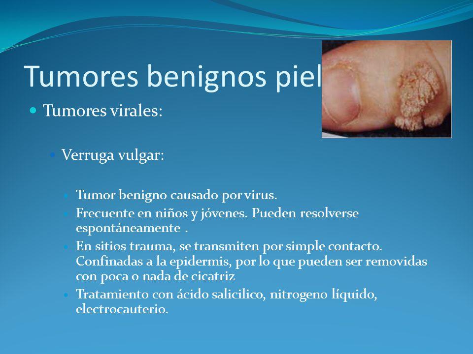 Tumores benignos piel Tumores virales: Verruga vulgar: Tumor benigno causado por virus. Frecuente en niños y jóvenes. Pueden resolverse espontáneament