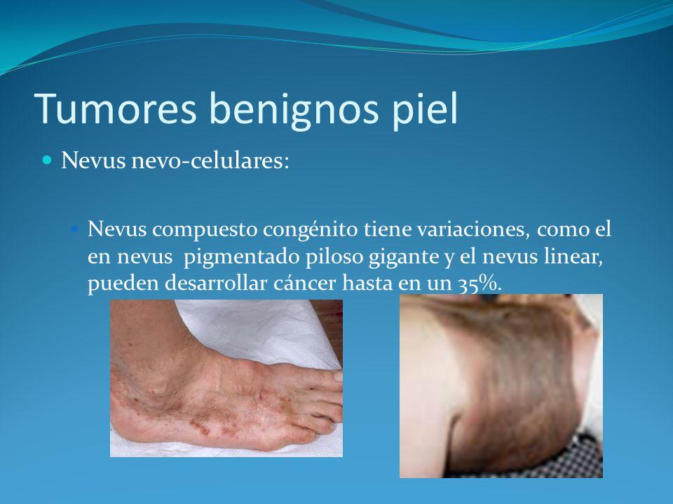 Tumores benignos piel Nevus nevo-celulares: Nevus compuesto congénito tiene variaciones, como el en nevus pigmentado piloso gigante y el nevus linear,