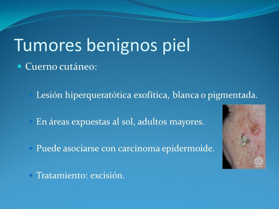 Tumores benignos piel Cuerno cutáneo: Lesión hiperqueratótica exofítica, blanca o pigmentada. En áreas expuestas al sol, adultos mayores. Puede asocia